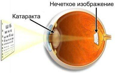 katarakta