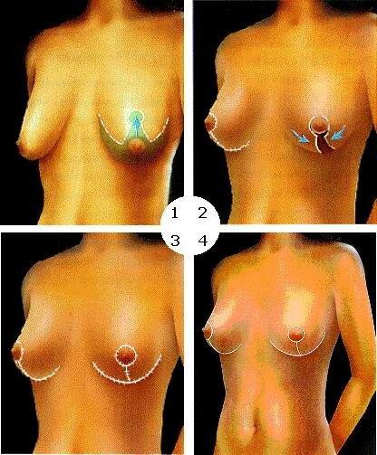mastopeksia Мастопексия или подтяжка груди