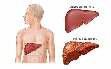 cirroz_pecheni Лечение цирроза печени народными средствами